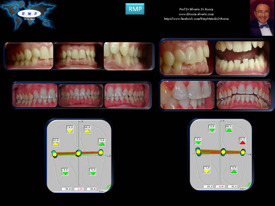 carranza ortodoncia postrural